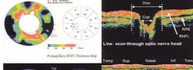 OCT (Tomografia a Coerenza Ottica) nella Patologia Maculare